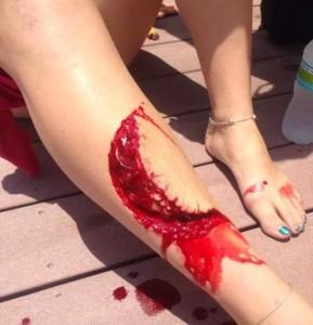 girl-bitten-leg-shark-florida-01-500x666